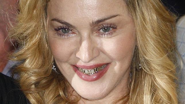 Madonna baña de oro y diamantes su sonrisa