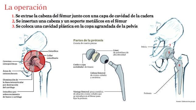 Las claves de la operación por la que se sustituirá la prótesis de la cadera del Rey