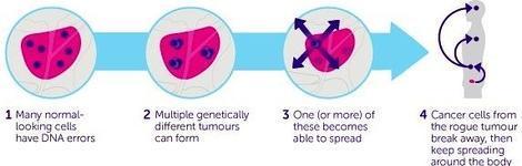origen del adenocarcinoma de próstata