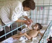Pablo Gómez, de cuatro años, está hospitalizado con siete kilos de peso. EPA