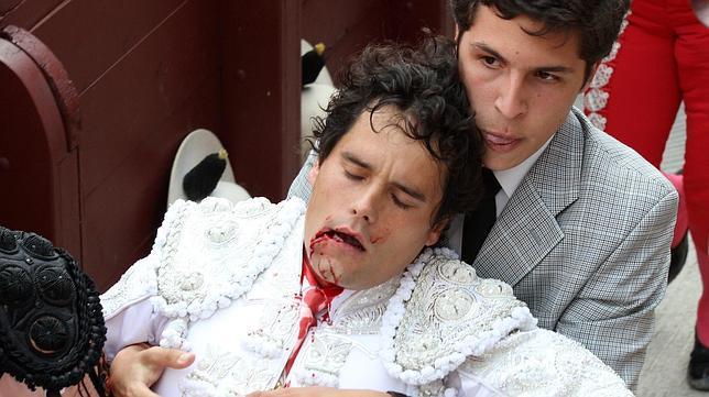 Miguel Abellán ha perdido seis dientes y casi no puede hablar tras la cogida