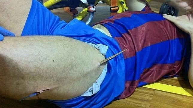 Un jugador de fútbol sala, ensartado por una astilla de parqué de medio metro