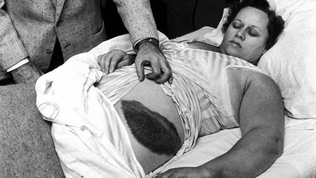 Imagen de Ann Hodges donde se aprecia el moratón provocado por el meteorito