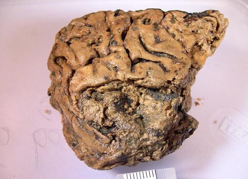 El cerebro de Heslington.