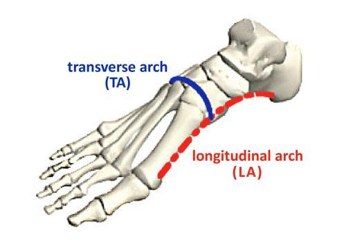 El arco longitudinal ha sido bien estudiado cuando se trata de la rigidez del pie, pero esta investigación encontró que el arco transversal puede ser más importante.