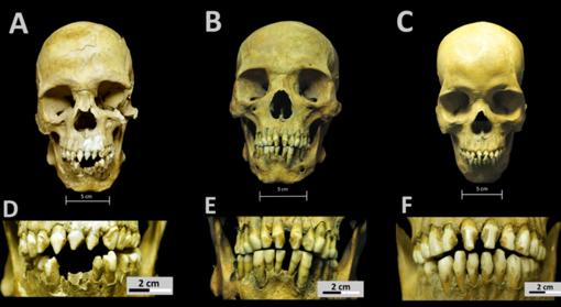 Cráneos y patrones de modificación dental de los tres africanos del Hospital Real San José de los Naturales