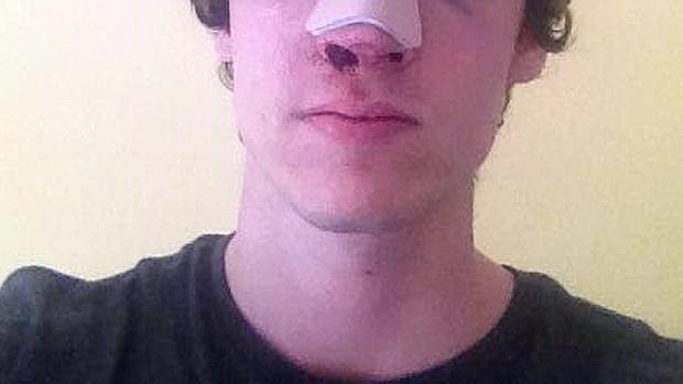 El joven agredido en Malasaña