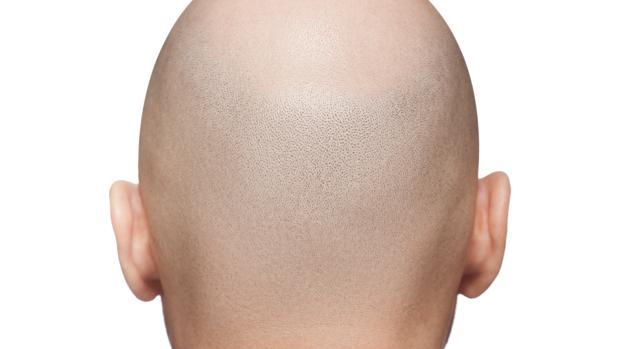 Existen diferentes tratamientos para la alopecia