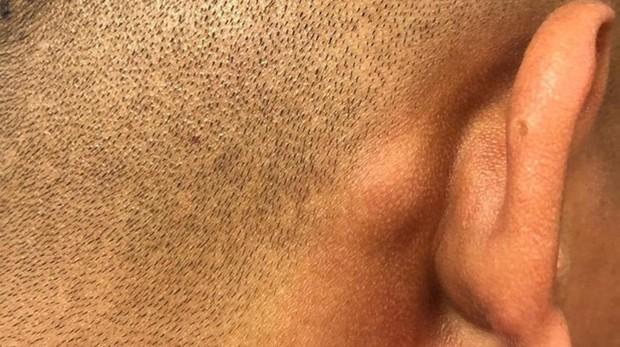 Golpe que recibió una de las víctimas detrás de la oreja