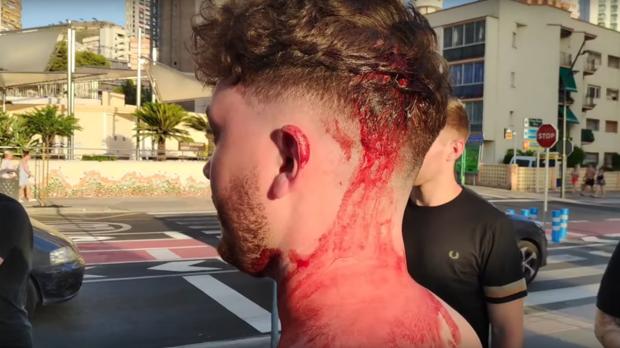 Imagen del agredido en un momento del vídeo