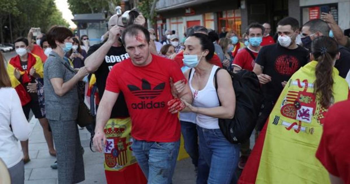 Almeida condena la agresión en la cacerolada de Moratalaz y señala ...