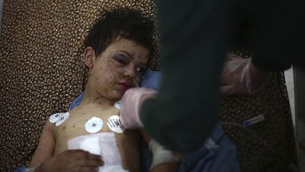 Un niño sirio descansa en la cama de un hospital tras resultar herido en un bombardeo sobre Douma, al noreste de Damasco