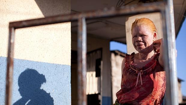 África no es un buen lugar para nacer albino