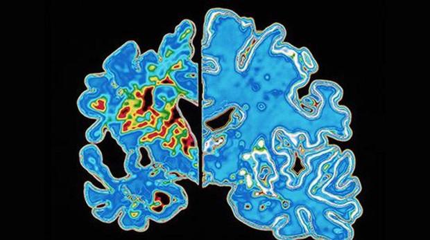 Sacaner de un cerebro con Alzhéimer