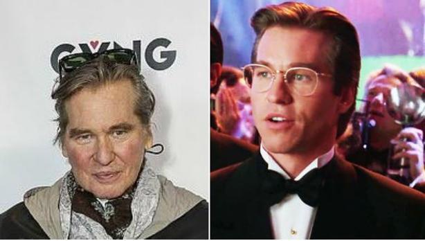 El antes y el después de Val Kilmer