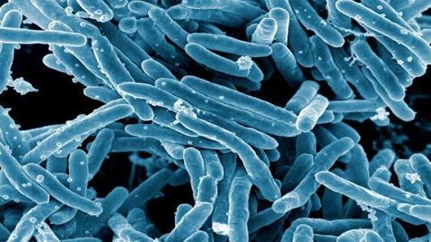 'Mycobacterium tuberculosis'