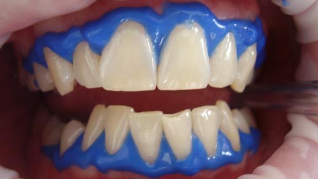 Caseras los postizos para dientes blanquear recetas