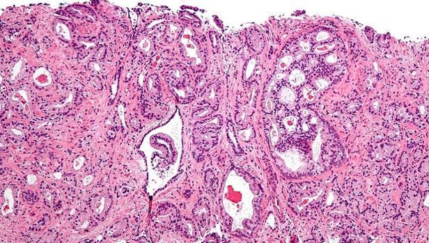 últimos descubrimientos sobre el cáncer de próstata