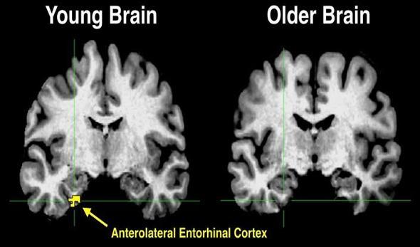 Descenso en la actividad de la corteza entorrinal anterolateral asociado a la edad