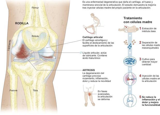 filtracion de liquido en la rodilla
