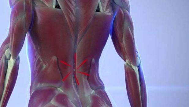 Ilustración de los músculos que se contraen en respuesta al dolor