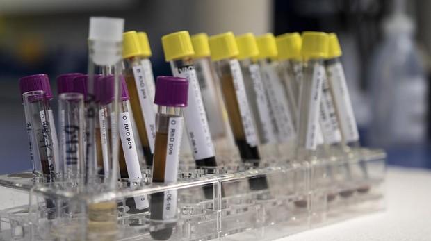 que enfermedades detecta el analisis de sangre