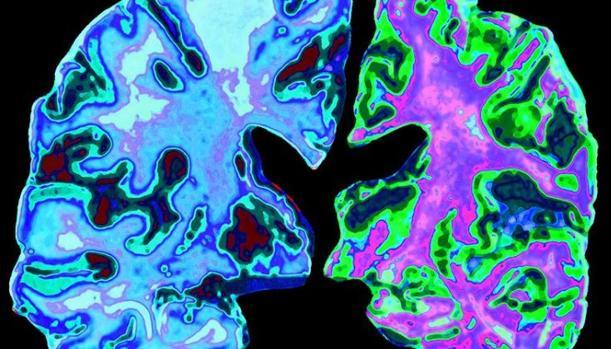 Cerebro con alzhéimer