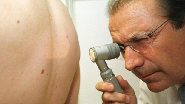 El melanoma es el cáncer de piel más peligroso