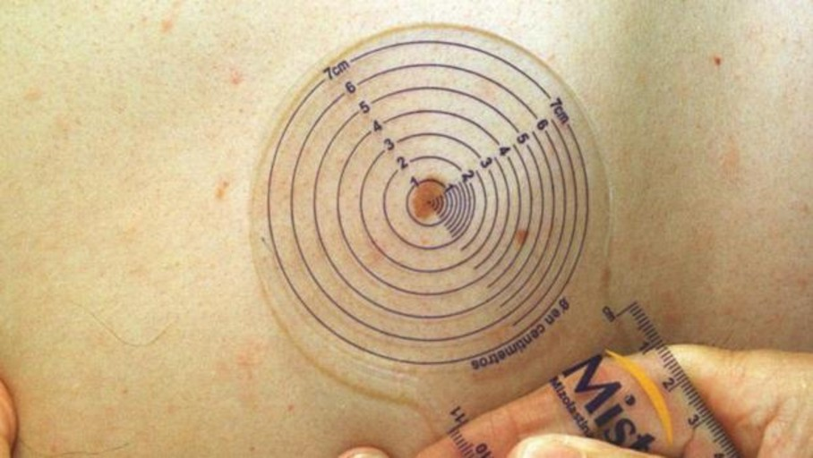 Llega a España un nuevo tratamiento para el melanoma metastásico que mejora la supervivencia