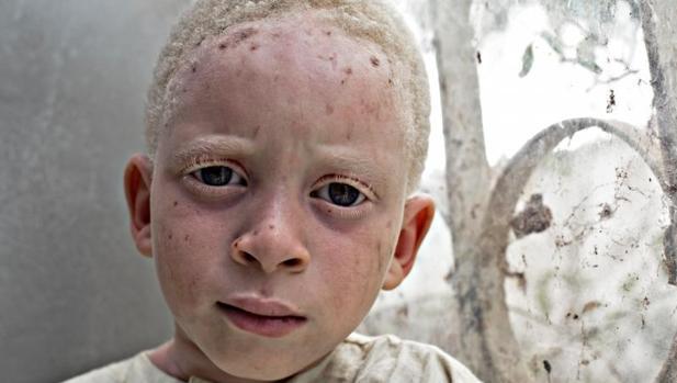 Los albinos apenas tienen un 10-15 % de agudeza visual