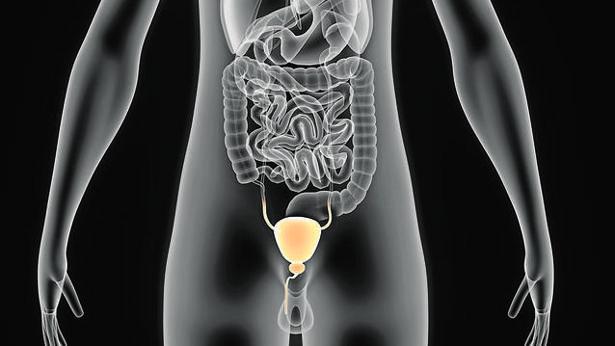 radiografía de resonancia magnética del cáncer de próstata