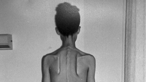 bulimia y cuales male offspring sus causas