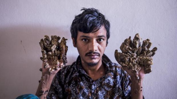 Abul Bajandar, de 28 años, ha sufrido 25 operaciones desde 2016